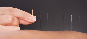 Acupuncture Needles Market 2017 Industry Research Report